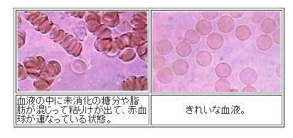 血液.png